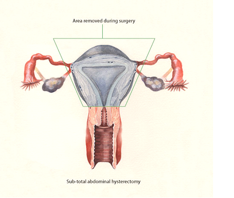 Orgasm during hysterectomy recovery